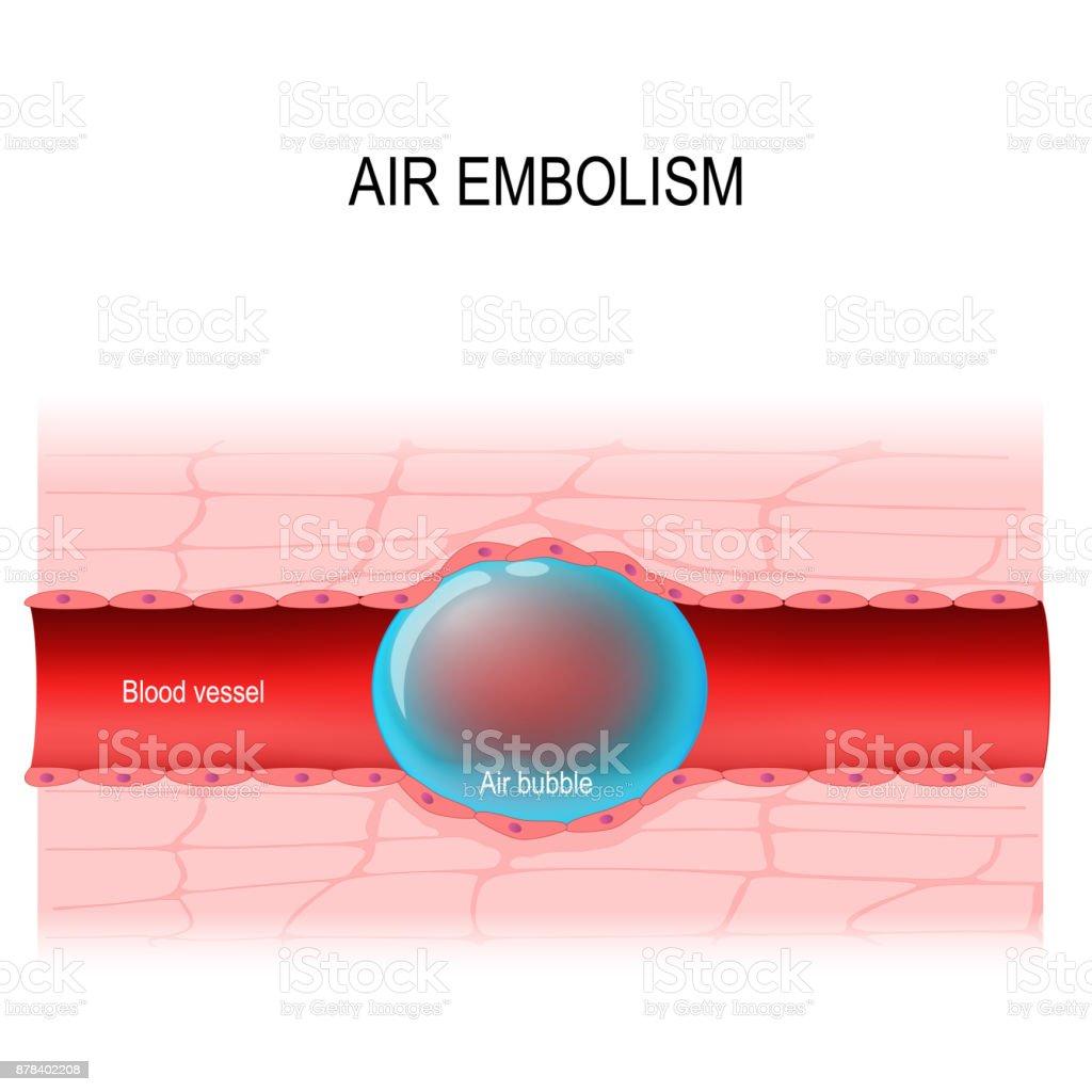 Luftembolien Ist Eine Verstopfung Der Blutgefäße Stock Vektor Art ...