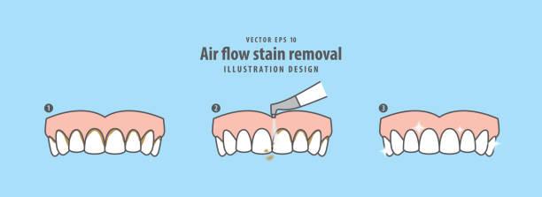 bildbanksillustrationer, clip art samt tecknat material och ikoner med luftflöde fläckborttagning och tandrengöring steg (övre) illustration vektor på blå bakgrund. dental koncept. - tandsten