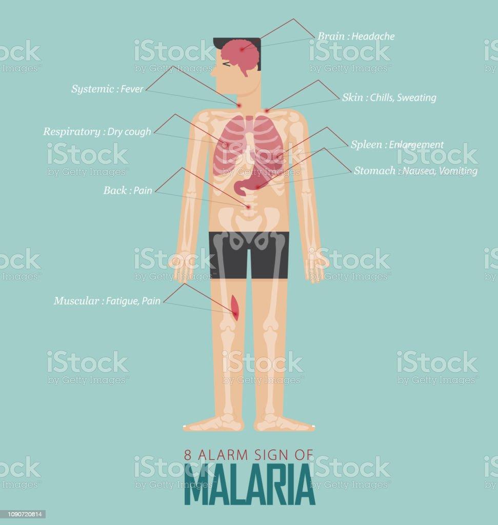 alarm signs of malaria infographic in flat design  malaria disease symptom  icon set with human