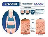 Albinism vector illustration. Labeled medical melanin pigment loss scheme.