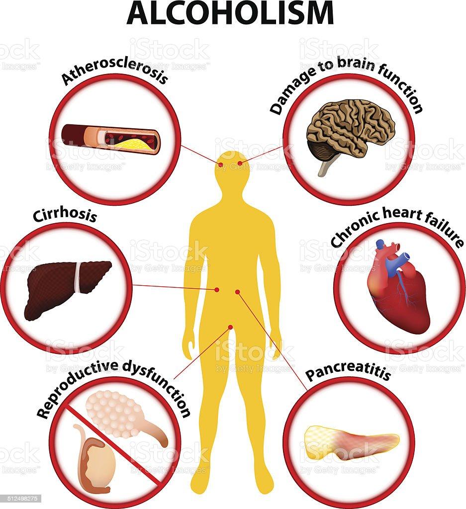 Alcoholism. infographic vector art illustration