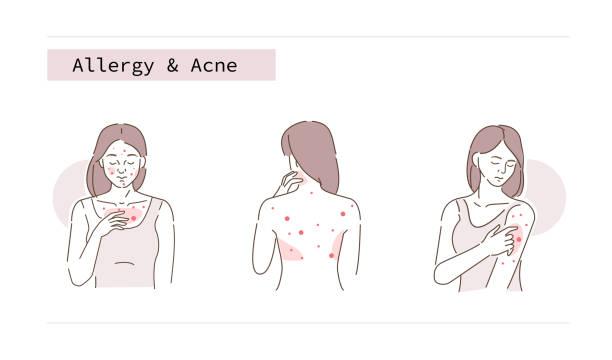 illustrazioni stock, clip art, cartoni animati e icone di tendenza di allergia e acne - irritazione