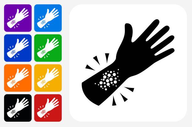 illustrazioni stock, clip art, cartoni animati e icone di tendenza di set di pulsanti quadrati dell'icona di reazione allergica - irritazione