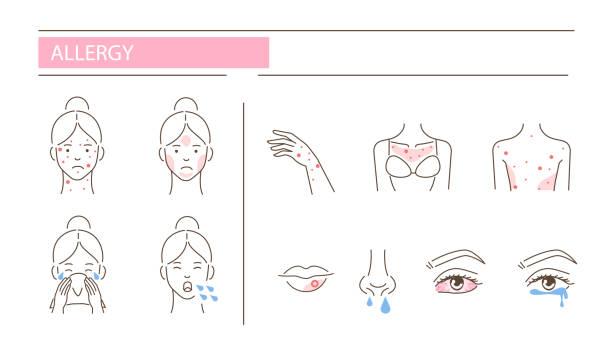 illustrazioni stock, clip art, cartoni animati e icone di tendenza di allergy - irritazione