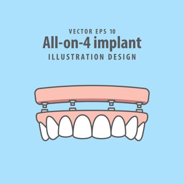 All-on-4 implant illustration vector on blue background. Dental concept. vector art illustration