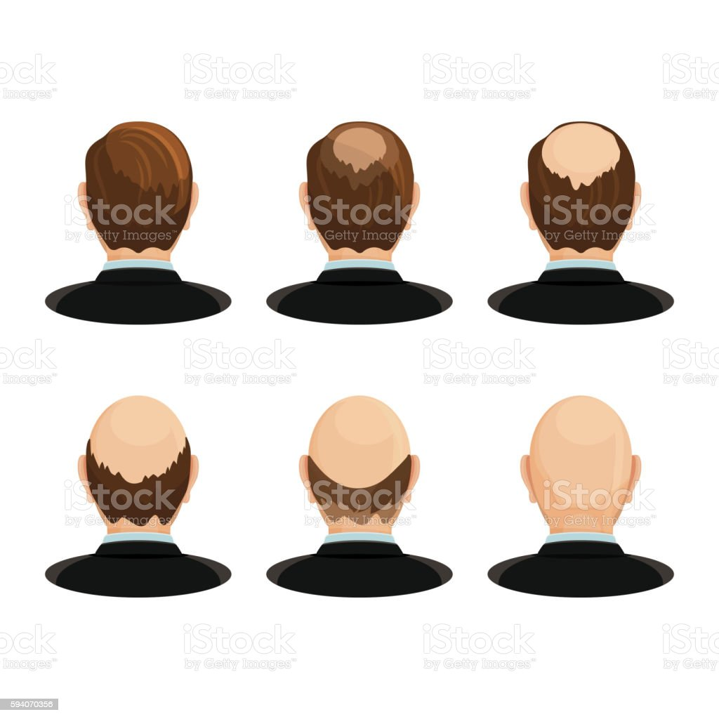 Alopecia concept. Set of heads showing the hairloss progress. vector art illustration