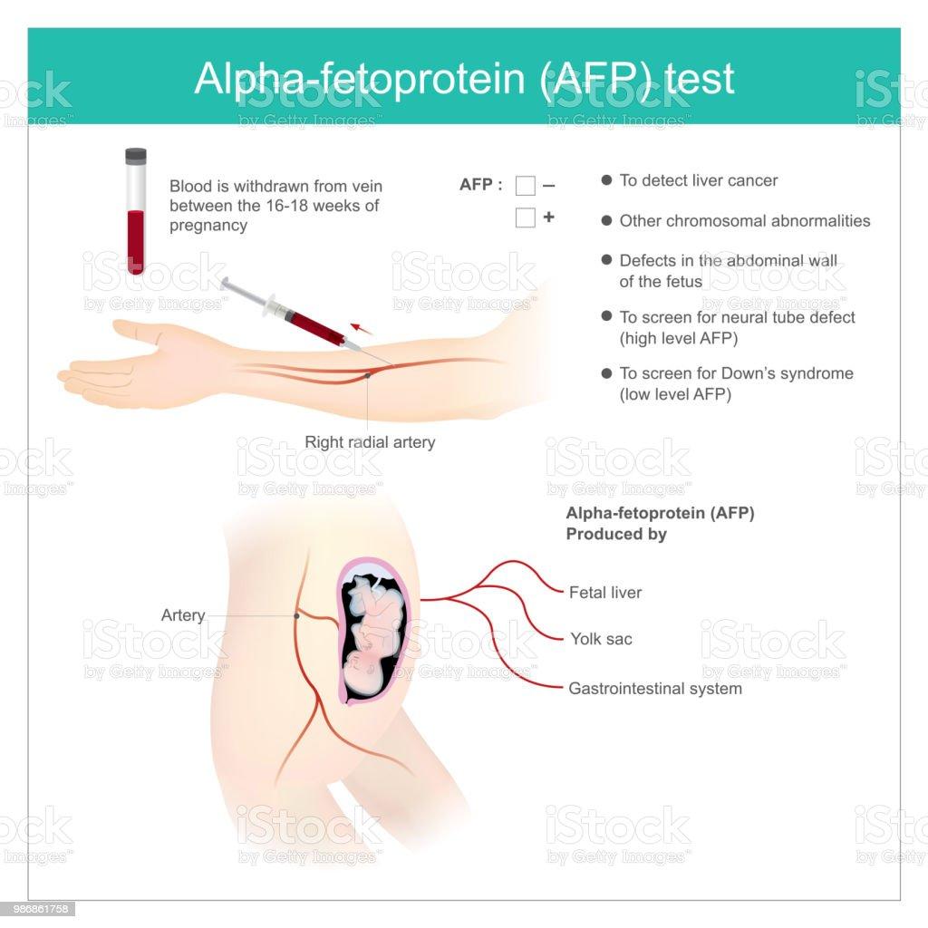 Alfafetoprotein during pregnancy. AFP test