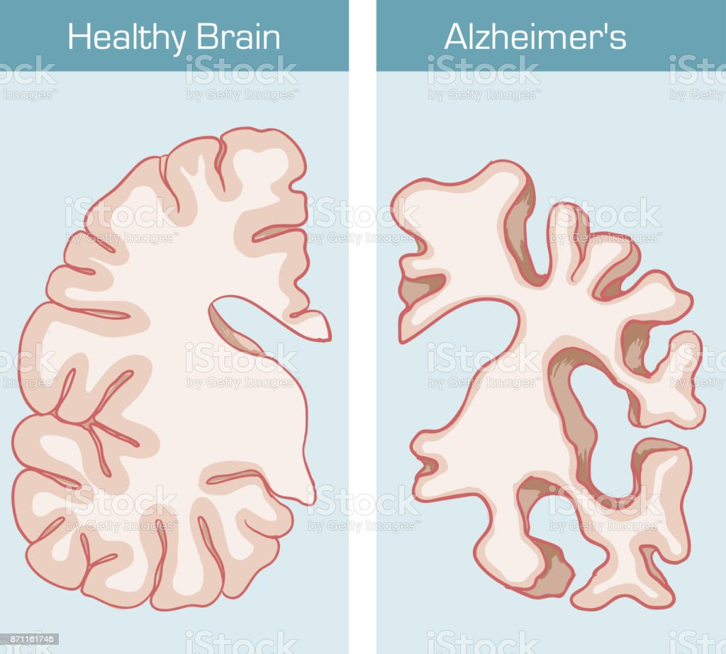 Alzheimer's Disease is a medical condition affecting the brain vector art illustration