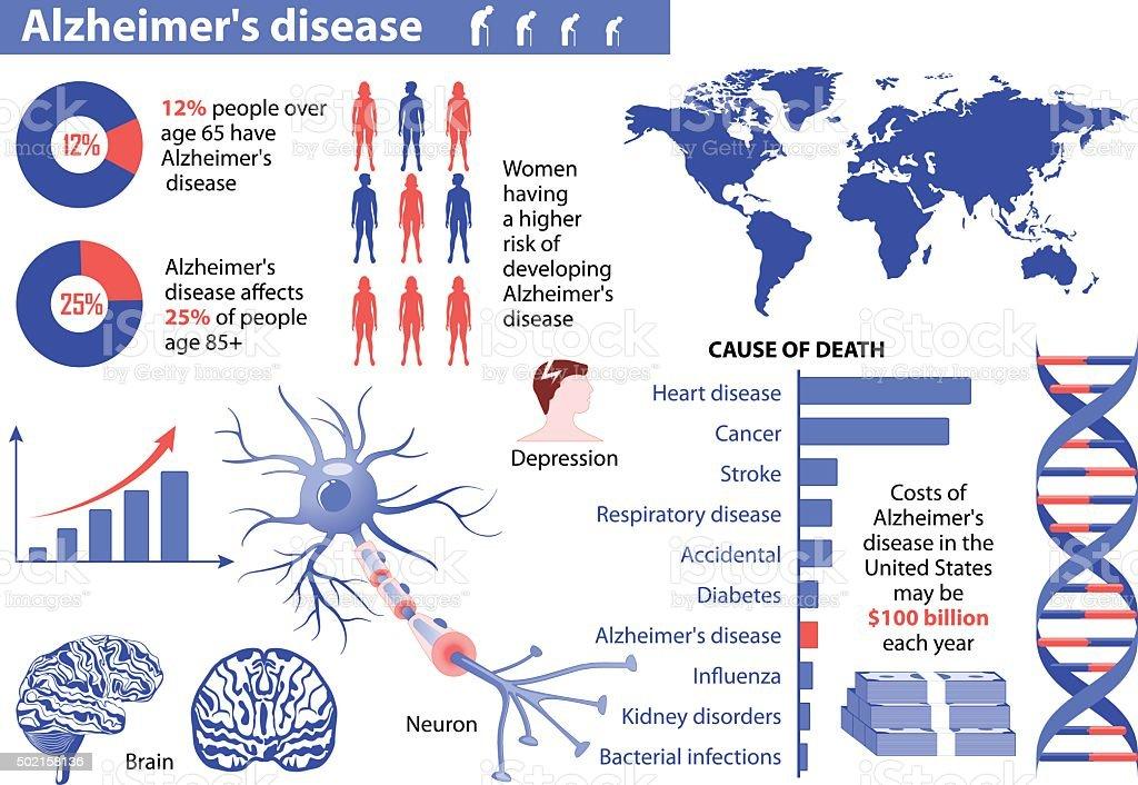Alzheimer's disease. Medical infographic vector art illustration