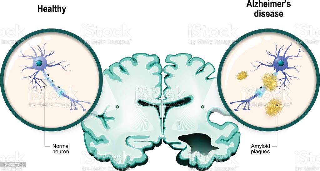Alzheimer's disease. Neurons and brain vector art illustration