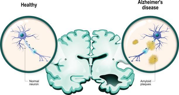 ilustrações de stock, clip art, desenhos animados e ícones de alzheimer's disease. neurons and brain - alzheimer