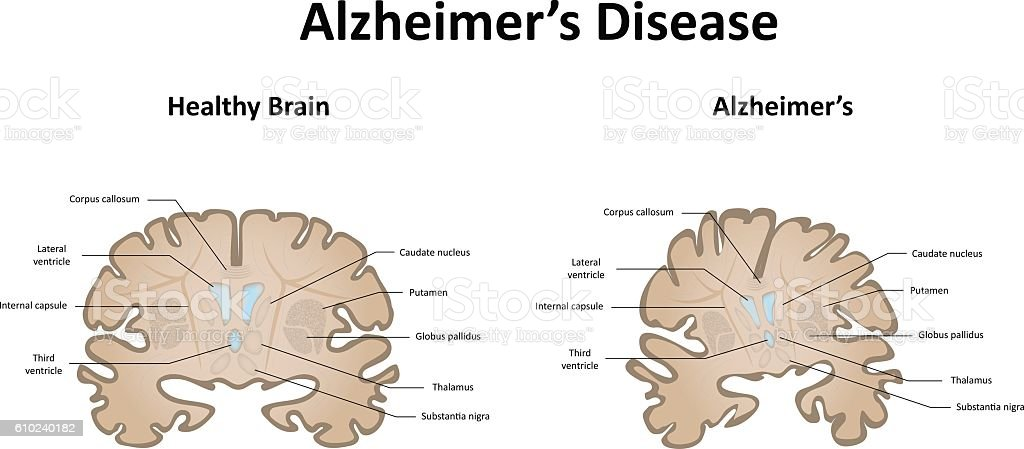 Alzheimer's Disease of the Brain and Motor System vector art illustration