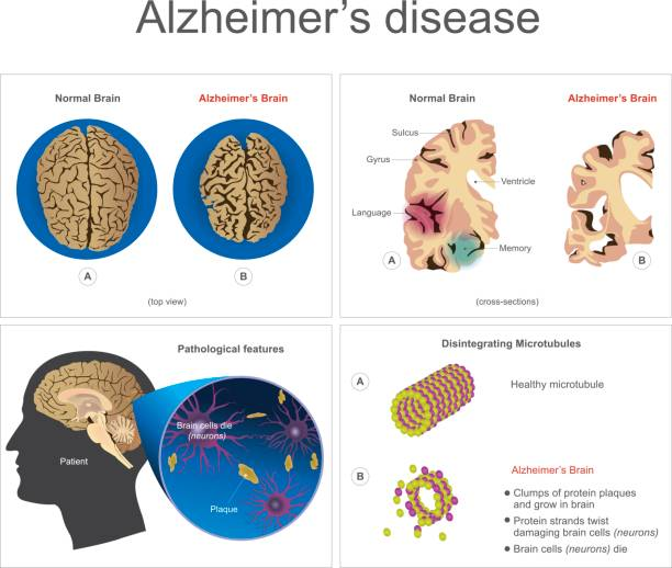 Alzheimer's  disease. Brain cells die, neuron diseased, certain areas of brain shrink memory loss or changes in memory for people age 65 and up at risk could affect younger people. Info graphic vector. hippocampus brain stock illustrations