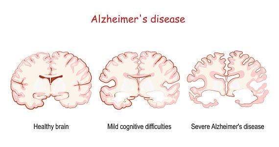 Alzheimer's, is a neurodegenerative disease. dementia.