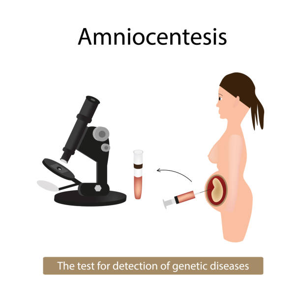 the above picture illustrates amniocentesis Get information, facts, and pictures about psychoanalysis at encyclopediacom make research projects and school reports about psychoanalysis easy with credible articles from our free, online encyclopedia and dictionary.