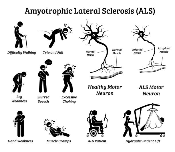 Amyotrophic lateral sclerosis ALS disease signs and symptoms. Illustrations depict nervous system or neurological disease in ALS patient. als stock illustrations