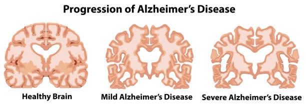 ilustrações de stock, clip art, desenhos animados e ícones de an anatomy of human brain - alzheimer