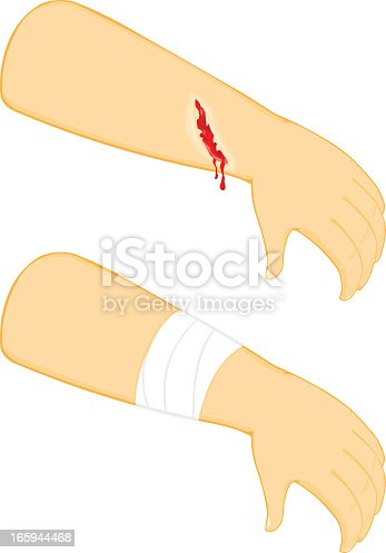 A vector illustration of a physical injury and medical treatment being received.