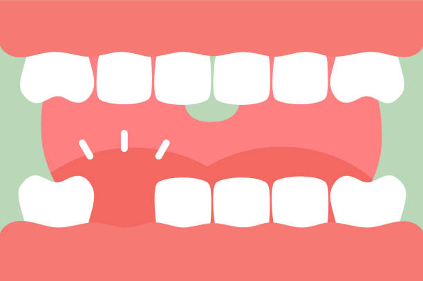 an open mouth with strong teeth and tongue and missing tooth vector art illustration