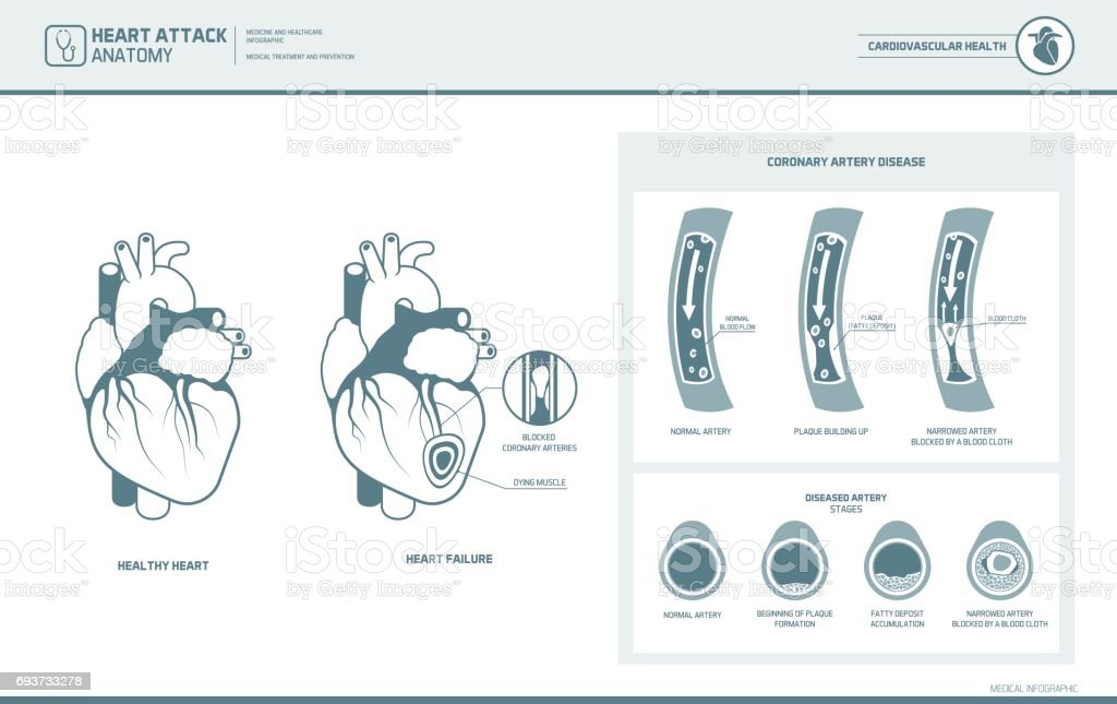 Anatomy Of A Heart Attack Stock Vector Art More Images Of Anatomy