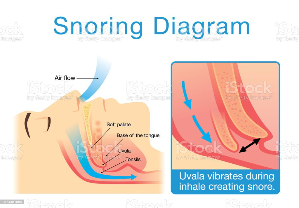 Anatomy Of Human Upper Airway While Sleeping With Snoring Stock ...