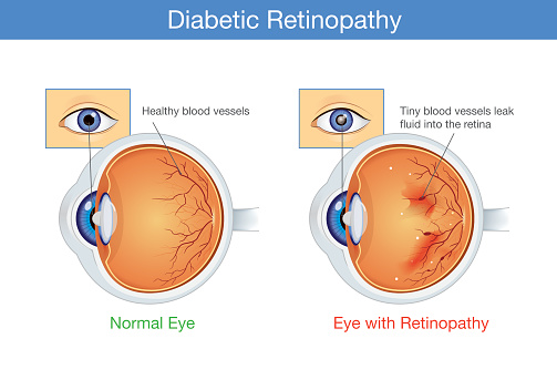 Anatomy of normal eye and Diabetic retinopathy.