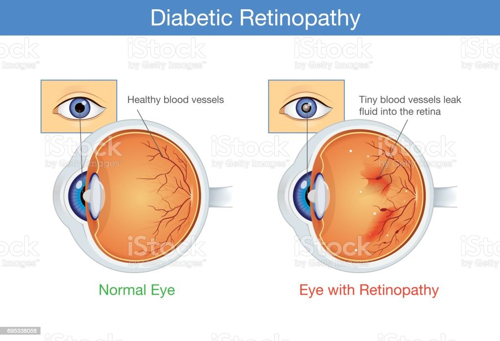 Anatomy of normal eye and Diabetic retinopathy. vector art illustration