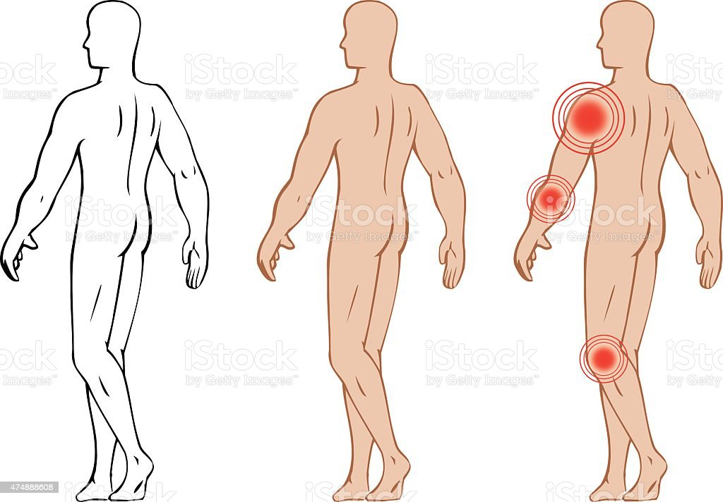 Anatomy Of The Human Body Representing Points Of Pain In Joints ...