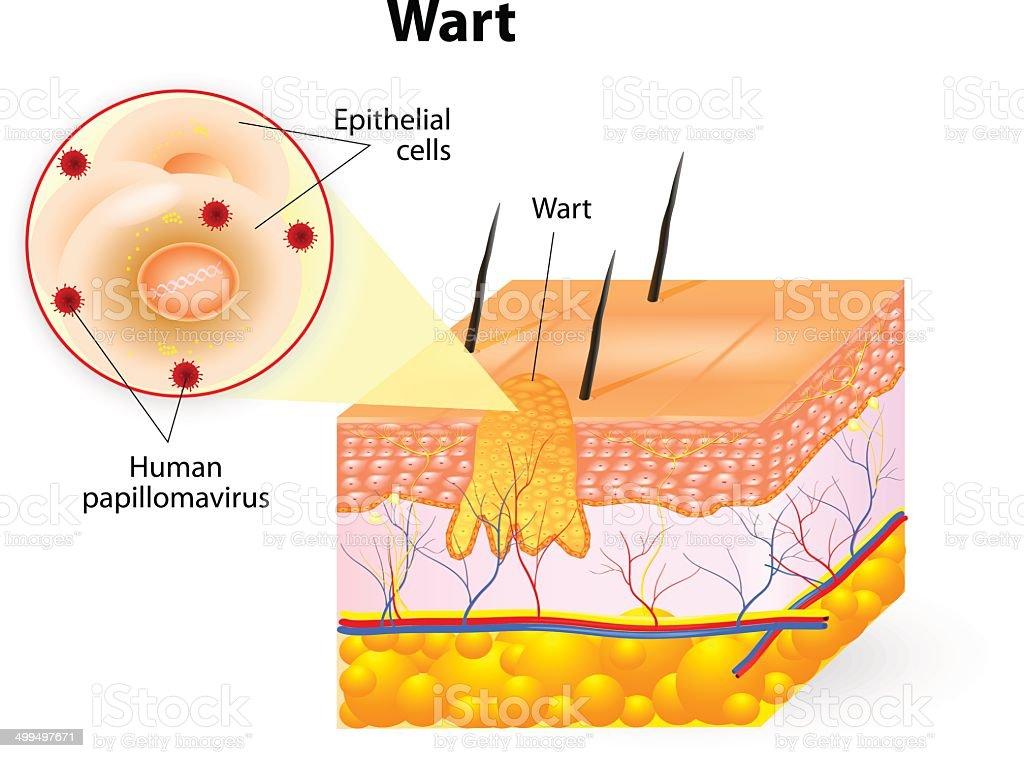 anatomy of Wart vector art illustration