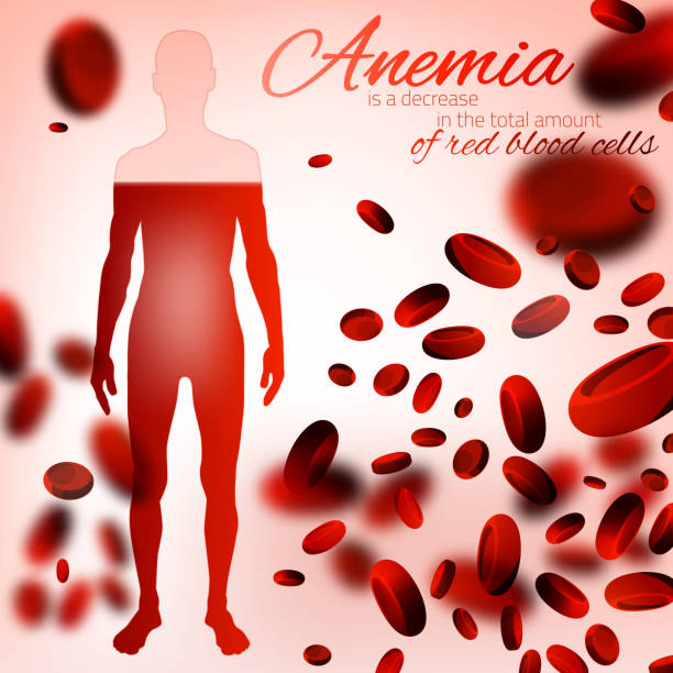 Anemia and Hemophilia Background Red blood cells background. Iron deficiency anemia image. Medical and healthcare concept with a human figure in pink and red colors. Editable vector illustration. anemia stock illustrations