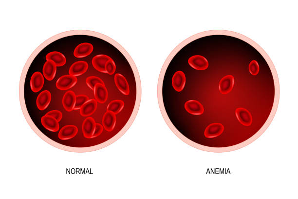 Anemia. blood of healthy human and blood vessel with anemia. blood of healthy human and blood vessel with anemia (difference). Anemia is a decrease in the total amount of red blood cells or hemoglobin in the blood. Vector illustration. anemia stock illustrations