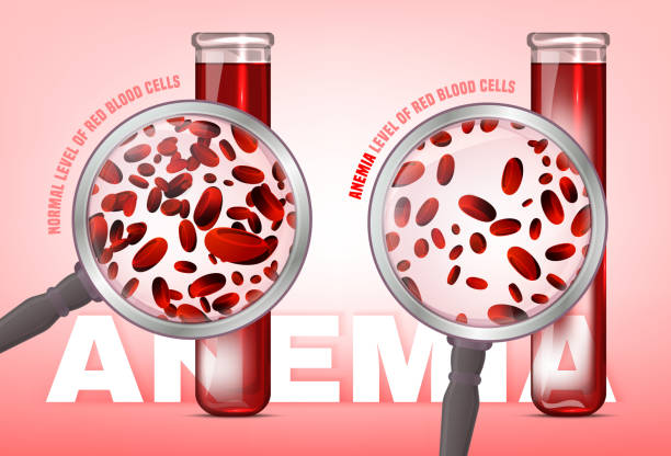 Anemia level of blood cells Normal level of red blood cells in comparison with iron deficiency anemia level. Medical and healthcare concept. Vector illustration isolated on a white background. anemia stock illustrations