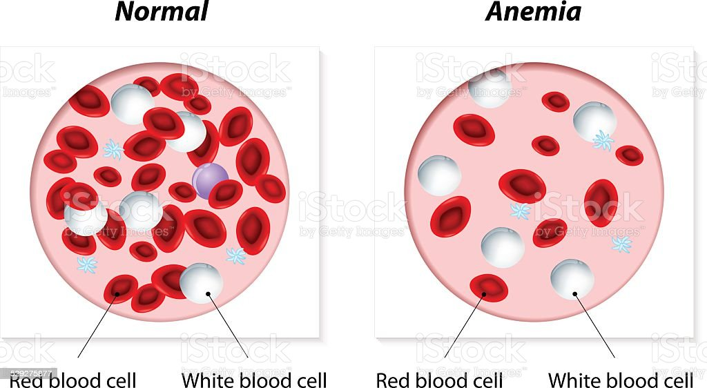 anemia Normal and anemic amount of red blood cells. Vector illustration Anatomy stock vector