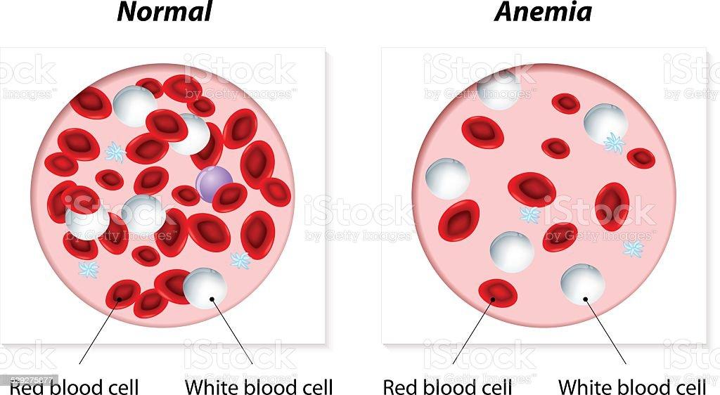 anemia vector art illustration