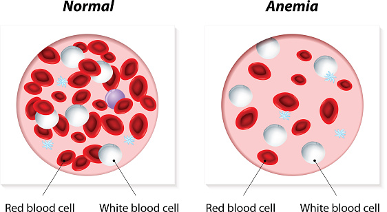 Anemia Stock Illustration - Download Image Now