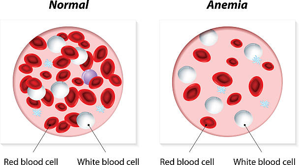 anemia Normal and anemic amount of red blood cells. Vector illustration anemia stock illustrations