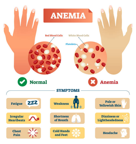 Anemia vector illustration. Labeled scheme with red blood cells. Anemia vector illustration. Medical labeled scheme with problematic red and white blood cells, and platelets. Microscopic diagram with disease diagnostic symptoms. anemia stock illustrations