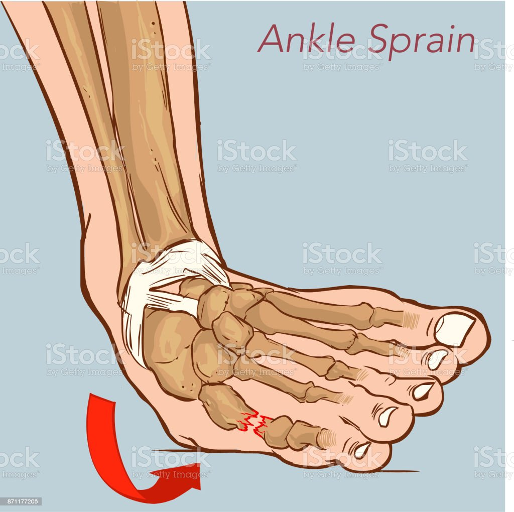 Ankle sprain while walking. Illustration about medical and good foot care. vector art illustration