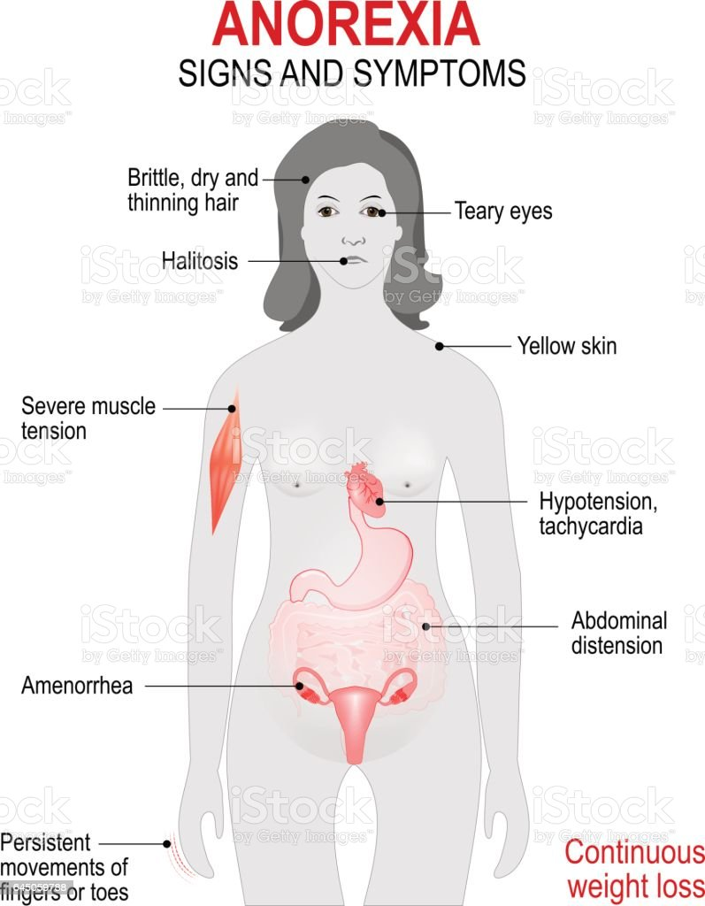 Anorexia nervosa. Signs and symptoms. vector art illustration