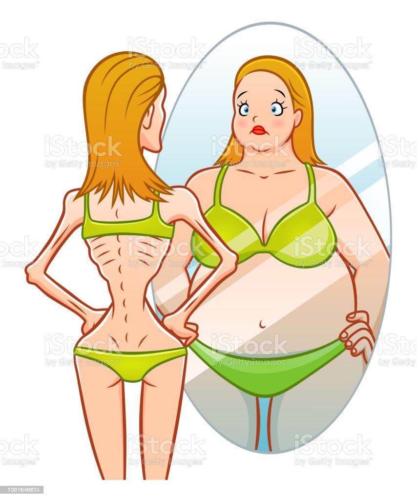 Anorexia vector art illustration