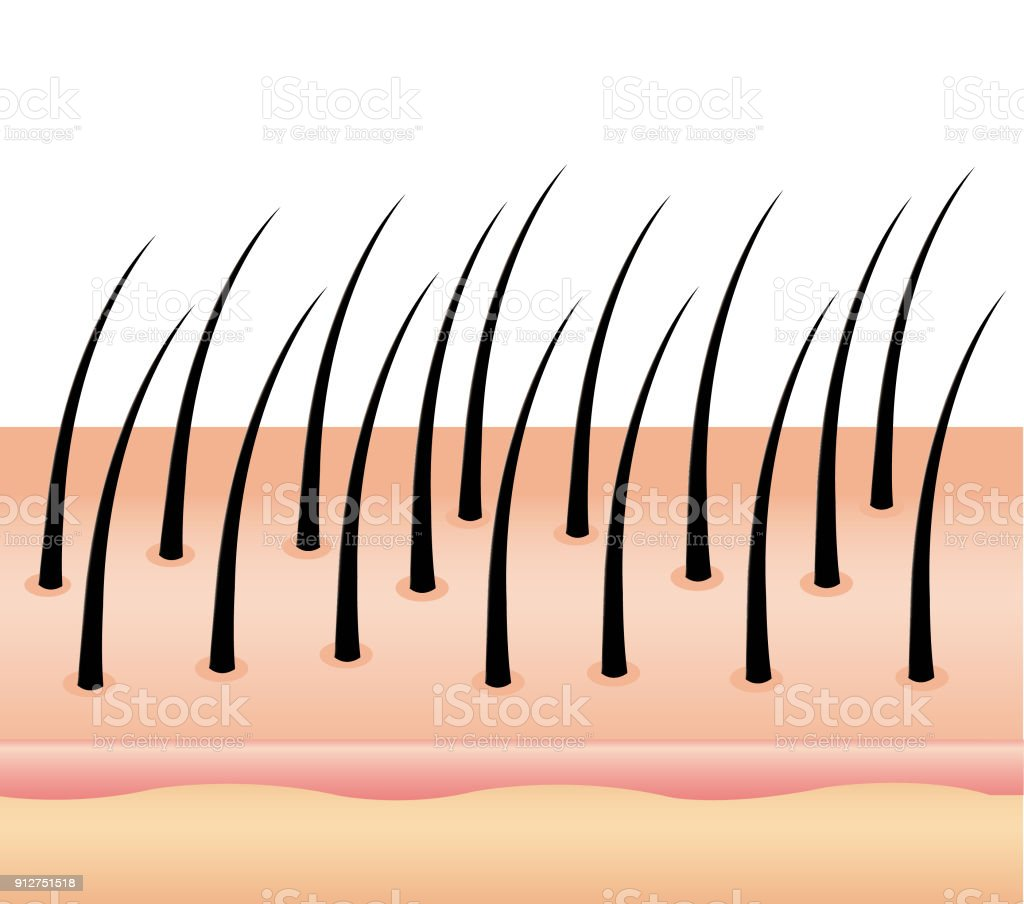 Anti Dandruff on hair, vector, hair scalp. hair and scalp treatment vector art illustration