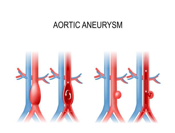 aortic aneurysm vector art illustration