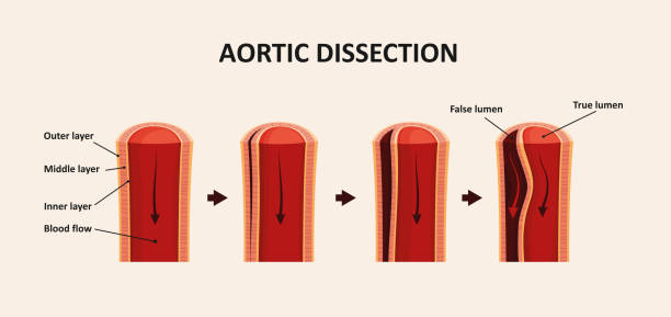 Aortic Dissection, Aortic Aneurysm vector art illustration