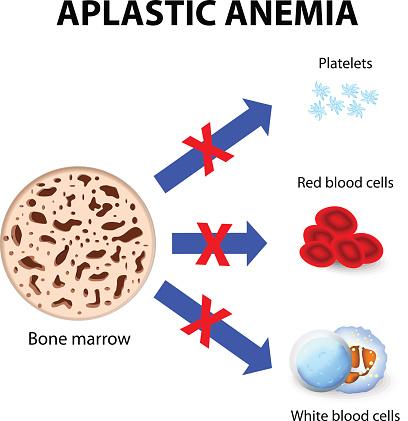 Aplastic Anemia Stock Illustration - Download Image Now