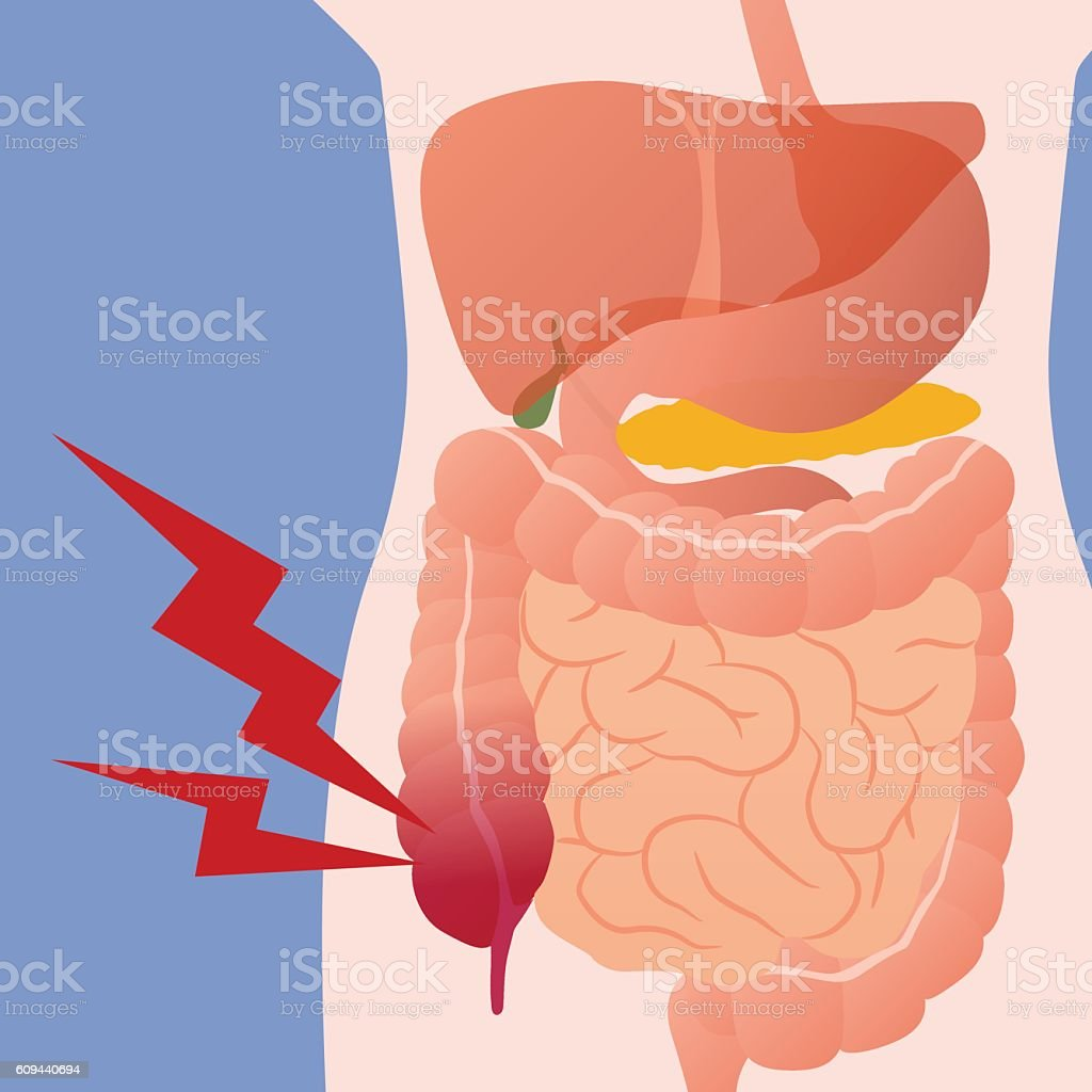 appendicitis and human digestive organs, vector illustration vector art illustration