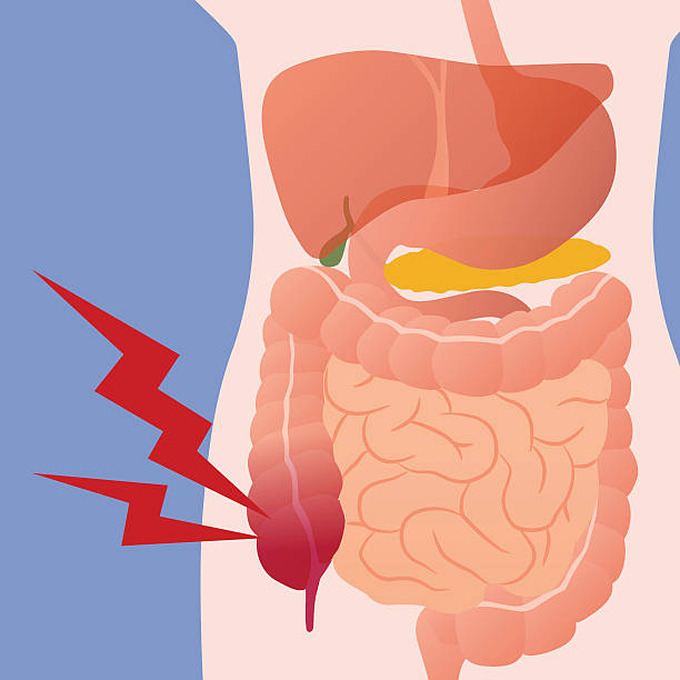 appendicitis and human digestive organs, vector illustration vector art illustration