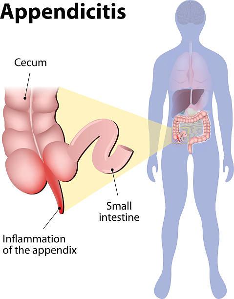 Appendicitis vector art illustration