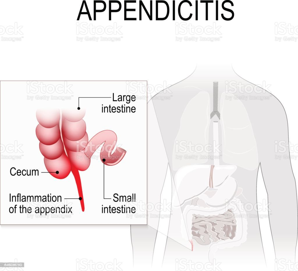 Appendicitis. vector art illustration