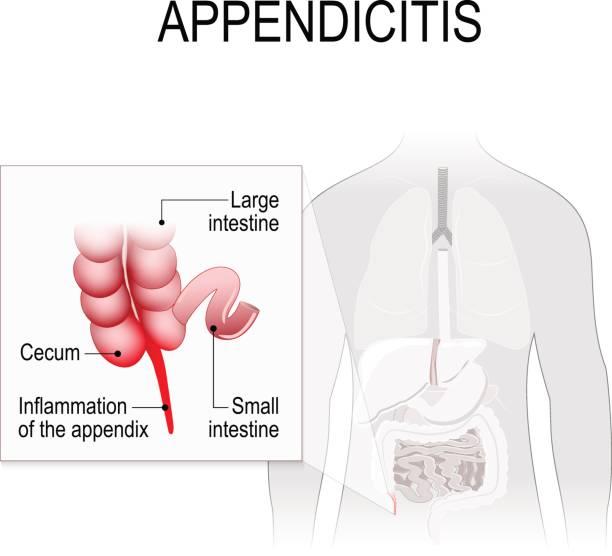 Appendicitis. vector art illustration