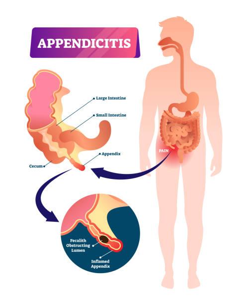 Appendicitis vector illustration. Labeled appendix inflammation pain scheme vector art illustration